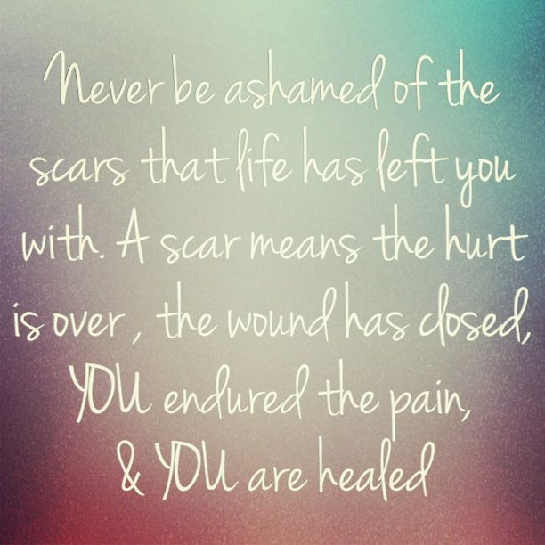 quotes-pinterest-quotes-about-scars-quotes-about-and-strength-dz6cAz-quote